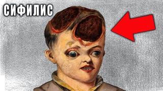 Живые Мертвецы 15 Века - Сифилис История Появления! Самая Позорная Болезнь в Средневековье.