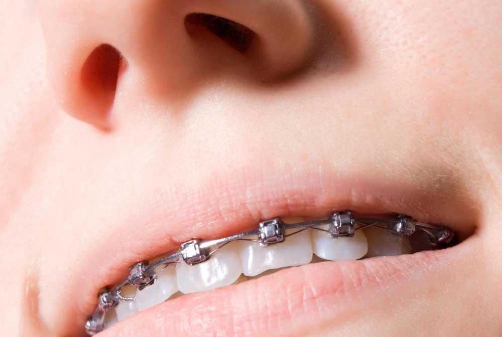 Как брекеты выпрямляют зубы?