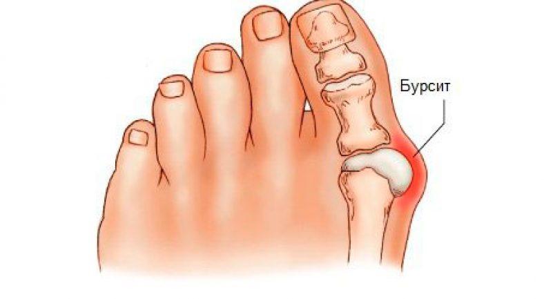 сильно болит сустав большого пальца ноги зарегистрировался форуме