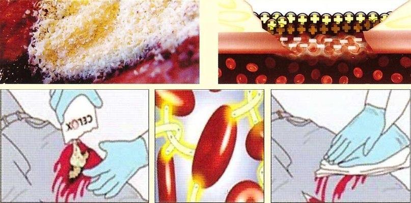 Кровоостанавливающее средство Celox: Полное руководство по применению, изображение №8
