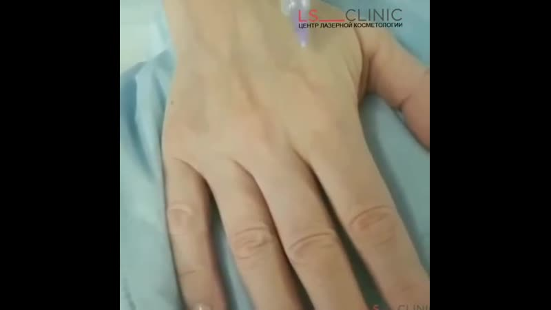 Внимание на руки