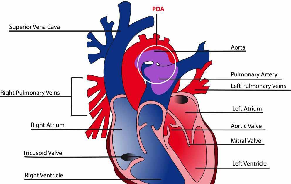 Заболевания, которые могут повлиять на легочные, аортальные, трикуспидальные и митральные клапаны сердца, могут включать стеноз и плохую функцию клапана.