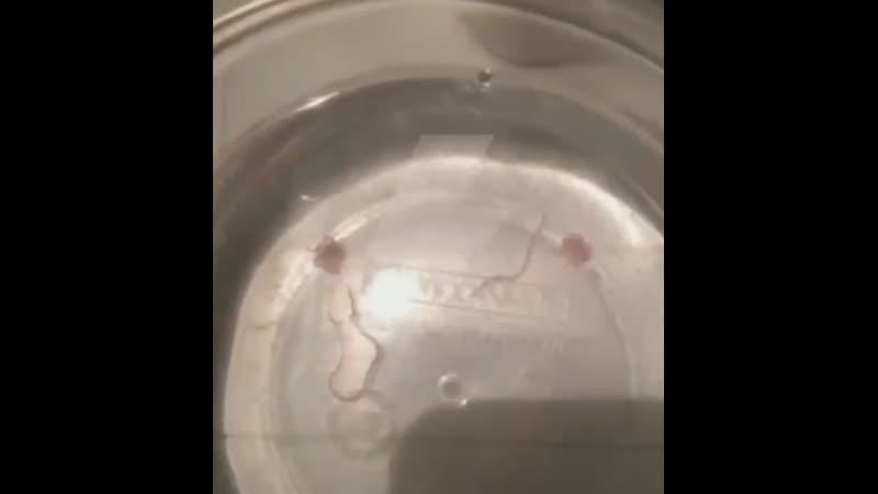 Читинец набрал ванну воды из-под крана вместе с червями🐍