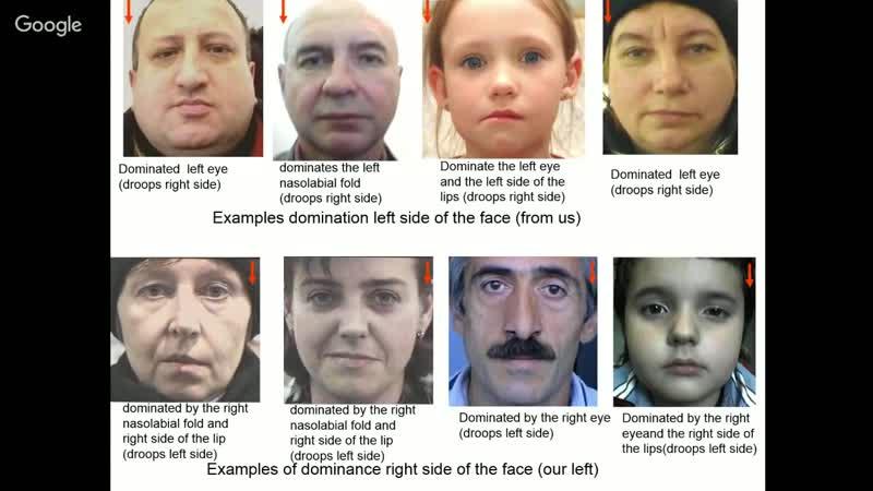 Ассиметрия эмоций на лице. Метод Ануашвили. Коррекция